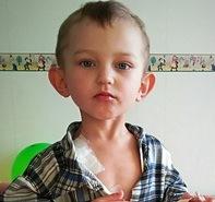 Помощь для лечения Фесун Алексея (с. Береза, Сумская обл.)
